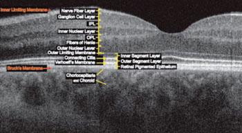 Imágenes: Dado que la OCT en el dominio de Fourier es rápida, es posible adquirir varios escaneos B, registrarlos (alinearlos) y construir una vista en tres dimensiones (3D) de las regiones de interés. Se pueden hacer cortes de la imágenes en cualquier orientación, por ejemplo a través de la parte superior de la retina para obtener escaneos C, los cuales proporcionan una vista similar a la obtenida con cámaras para el fondo ocular u oftalmoscopios láser de barrido (Fotografía cortesía de la Universidad de California, Davis).