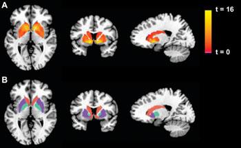 Imagen: La activación de los ganglios basales durante una tarea de apuestas. De izquierda a derecha: Cortes axial, coronal y transversal del cerebro. La fila superior muestra la activación durante el contraste entre ganar y perder, para una muestra conjunta de sujetos positivos y de control para el síndrome de fatiga crónica (SFC), como un mapa estadístico paramétrico con umbrales a una p