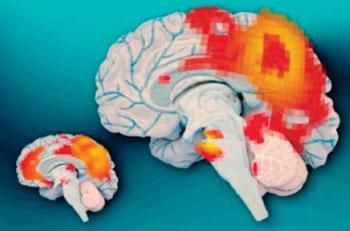 Imagen: Izquierda, los cerebros de los adultos que tuvieron TDAH infantil, pero ya no la tienen, muestran actividad sincrónica entre la corteza cingulada posterior (la región más grande de color rojo) y la corteza prefrontal media (región roja más pequeña). A la derecha, los cerebros de los adultos que continúan padeciendo TDAH no muestran esta actividad sincrónica (Fotografía cortesía de José-Luis Olivares/MIT).