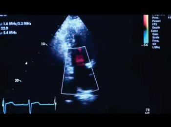 Imagen: El sistema Vivid T8 para ecografía cardiovascular ofrece características cuantitativas, tales como las funciones para eco de esfuerzo y ecocardiografía transesofágica (TEE)  (Fotografía cortesía de GE Healthcare).