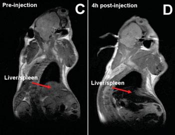 Imagen: Cuerpo de un ratón antes y después de las inyecciones de nanopartículas. La pérdida de señal en el hígado y en el bazo debido a la acumulación del hierro de las nanopartículas se indica con las flechas rojas (Fotografía cortesía de la Universidad Imperial de Londres).