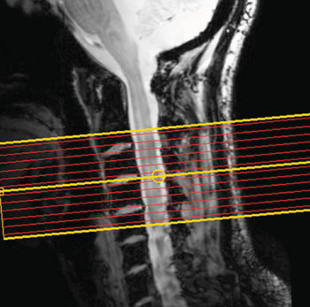 Imagen A: Los niveles de actividad de diferentes partes de la médula espinal de personas en reposo se midieron utilizando fMRI (Fotografía cortesía de Barry RL, Smith SA, Dula AN, et al, revista eLIFE, 5 de agosto de 2014).