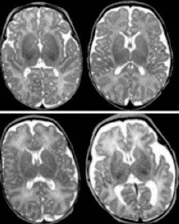 Imagen: Una resonancia magnética del cerebro de un niño prematuro, puede revelar anomalías que no se habrían detectado con los métodos convencionales. Las exploraciones de la izquierda muestran la materia gris normal, mientras que las de la derecha muestran la materia gris anormal (Fotografía cortesía de la Universidad de Washington en San Luis).
