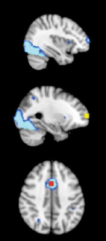 Imagen: Cuadro de 8 mm de diámetro con la región de interés (ROI) de 1.000 mm3 en la corteza frontal, obtenido de un mapa de activación promedio durante las condiciones incongruentes, neutras y NoGo para la habilidad del control cognitivo, en grupos de niños, tanto de control como durante la actividad física en fases previa y posterior a las pruebas (fijación del umbral en Z > 6). Corteza prefrontal anterior derecha = amarillo; ACC = rojo; mapa de activación promedio = azul (Fotografía cortesía de la revista Frontiers in Human Neuroscience).