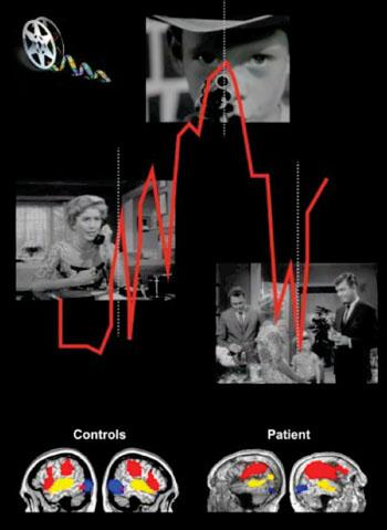 Imagen: Los pacientes en estado vegetativo tienen niveles de actividad cerebral equivalentes a los de los controles normales cuando observan una película de Alfred Hitchcock (Fotografía cortesía de Lorina Naci de la Universidad Western).
