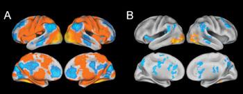 """Imagen A: Las exploraciones por fMRI de todos los sujetos incluidos en el estudio. Las zonas amarillas y rojas mostradas en la sección A representan las partes del cerebro que se activan mientras las personas están formando los """"recuerdos esenciales"""" de unas imágenes que han visualizado. La Sección B representa las zonas de mayor activación, que se muestran en amarillo y rojo, mientras se están formando los recuerdos detallados (Fotografía cortesía de Jagust Lab)."""
