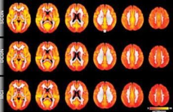 Imagen: Perfusión cerebral: El color rojo indica perfusión baja y el amarillo indica perfusión alta. En general, la perfusión cerebral es similar para los tres grupos (ver el artículo). La diferencia más prominente aparece en la corteza cingulada posterior (indicada por la flecha), una región cercana a la línea media de las partes superior y posterior del cerebro. Los participantes de control que permanecen estables tienen una mayor perfusión en comparación con los controles del deterioro y con aquellos con DCL (Fotografía cortesía de la Sociedad Radiológica de América del Norte).