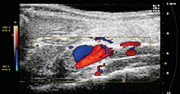 Imagen: Los investigadores están usando imágenes de ultrasonido para estudiar los aneurismas aórticos abdominales, una aflicción potencialmente fatal (Fotografía cortesía de la Universidad de Purdue / Facultad de Ingeniería Biomédica Weldon).