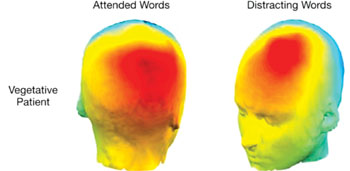 Imagen: Los patrones de la actividad eléctrica que se presentó en la cabeza de unos pacientes en estado vegetativo cuando escucharon ciertas palabras escogidas y cuando fueron distraídos por palabras novedosas pero irrelevantes (Fotografía cortesía de clinical Neurosciences).
