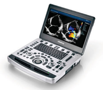 Imagen: El sistema portátil para ultrasonido multifuncional M9 (Fotografía cortesía de Mindray).