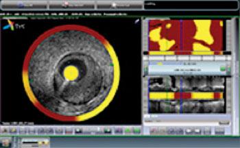 Imagen: TVC Composite (Foto cortesía de  Infraredx).