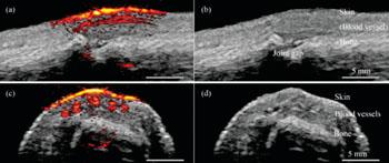 Imagen A: Imágenes fotoacústicas/ultrasonido tomadas con el nuevo sistema en que se ve la articulación de un dedo desde diferentes ángulos. Las imágenes a la derecha (b y d) muestran las estructuras anatómicas reveladas por el ultrasonido. Las imágenes a la izquierda (a y c) muestran los datos fotoacústicos sobrepuestos sobre los datos del ultrasonido. El amarillo brillante y el rojo en la parte superior del dedo muestran la piel y los vasos sanguíneos que corren paralelos al dedo (Fotografía cortesía de Pim van den Berg / Khalid Daoudi).