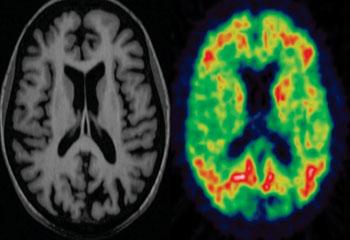 Imagen: Exámenes de RM y PET de un paciente con demencia (Fotografía cortesía del Dr. Paul Edison, unidad de imagenología en neurología, Centro de Imagenología Traslacional Internacional Innova del Colegio Imperial de Londres).