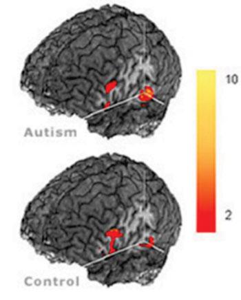Imagen A: Diferencias entre los cerebros de individuos autistas y control usando RM (Fotografía cortesía del Centro para la Imagenología Cerebral Cognitiva, Universidad Carnegie Mellon)