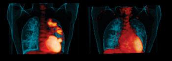 Imagen: Puntos de infección en los pulmones de los pacientes antes del tratamiento (izquierda). Mejora de la enfermedad después de seis meses de tomar linezolid (derecha) Fotografía cortesía de la Universidad de Pittsburgh).