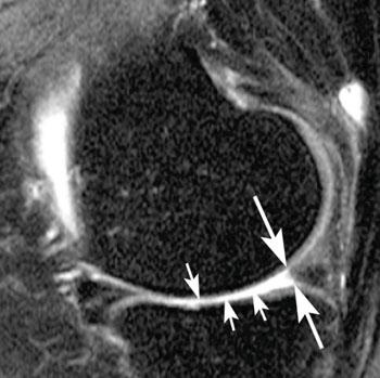 Imagen A: Ejemplos de desgarros meniscales y situación después de la cirugía. La imagen sagital, saturada en grasa, intermedia, muestra un desgarro del menisco típico, horizontal-oblícuo, del cuerno posterior que alcanza la superficie inferior del menisco (flechas) (Fotografía cortesía de la RSNA).