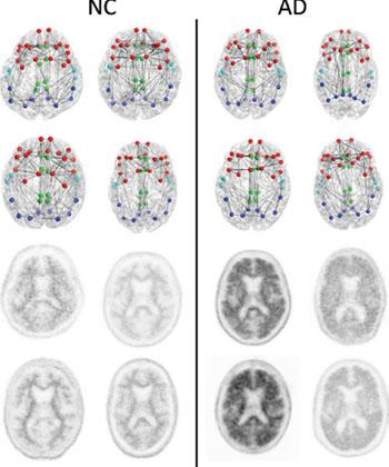 Imagen: Conectomas estructurales (dos hileras superiores) y las imágenes PET con florbetapir correspondientes (dos hileras inferiores) en cuatro pacientes con cognición normal (CN) con la carga más baja de amiloide en la corteza (izquierda) y los cuatro pacientes con EA con la carga más alta de amiloide en la corteza (derecha) enfocada en las regiones compuestas usadas en el conectoma versus el análisis de amiloide. Los nodos representan los centroides de las parcelaciones FreeSurfer en las regiones frontal (rojo) cingulada (verde), temporal (azul claro) y parietal (azul oscuto). Esto solo es un esquema que busca mostrar los conceptos y no busca mostrar ningún tipo de diferencia generalizable discernible visualmente entre los pacientes con CN y aquellos con EA. La métrica de la red estructural suministra información más sensible sobre el conectoma de las que son aparentes a través de la sola visualización (Fotografía cortesía de la RSNA).