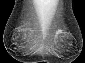 Imagen A: Visiones oblícuas mediolaterales, bilaterales (MLO) de las mamografías de cribado (Fotografía cortesía de la RSNA).