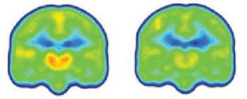 Imagen: Las imágenes creadas al promediar los datos de los exámenes PET de los pacientes con dolor crónico (izquierda) y los controles sanos (derecha) muestran niveles más altos de la proteína translocadora asociada con la inflamación (naranja/rojo) en el tálamo y otras regiones cerebrales de los pacientes con dolor crónico (Fotografía cortesía de Marco Loggia, Centro Martinos para Imagenología Biomédica, Hospital General de Massachusetts).