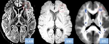 Imagen: Las manchas azules en el examen cerebral con DTI en la derecha, son daño nervioso que no se ve en los otros dos exámenes estándar (recuperación de inversión con atenuación de fluidos [FLAIR] y la imagenología de susceptibilidad ponderada [SWI] del mismo cerebro (Fotografía cortesía de Doctors Imaging).