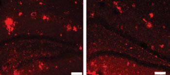 Imagen: Anomalías de placa en el cerebro de un ratón (izquierda), y el tejido cerebral tratados con ultrasonido enfocado guiado por RM (derecha) (Fotografía cortesía de Kullervo Hynynen, Instituto de Investigación Sunnybrook).