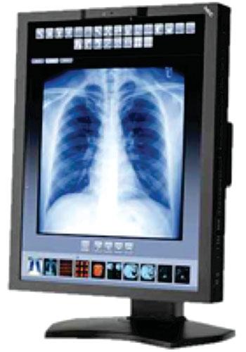 Imagen: El monitor para revisión del diagnóstico MD210C3 (Fotografía cortesía de NEC Display Solutions).