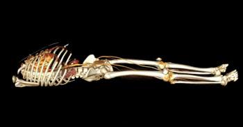 Imagen: Una TC de cuerpo entero con medios de contraste (Fotografía cortesía de Atelier KMR).