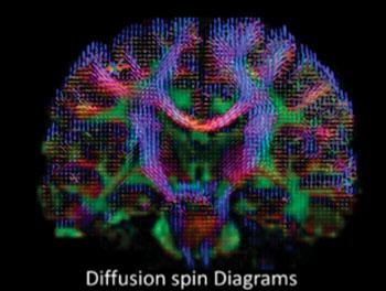 Imagen: Una resonancia magnética de alta definición de la difusión del agua, para el estudio de la lesión cerebral traumática (Fotografía cortesía de Sudhir Pathak y Walter Schneider/Universidad de Pittsburgh).