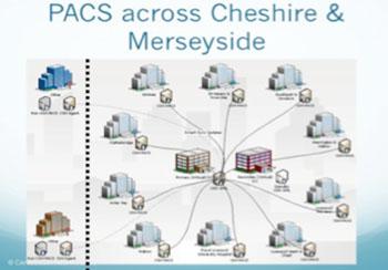 Imagen: Un esquema del PACS Virtual para Diversos Centros (Fotografía cortesía de Carestream Health).