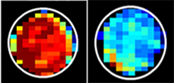 Imagen: Las células normales (izquierda) tienen mucha más azúcar unida a las proteínas de la mucina que las células cancerosas (derecha). El azúcar unido a la mucina genera una alta señal de resonancia magnética, que se muestra en rojo (Fotografía cortesía de Xiaolei Song/Medicina Johns Hopkins).