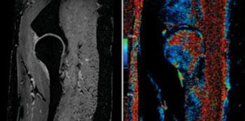 Imagen: Con la imagenología de Siemens de 7-T se pueden obtener imágenes de la capa fina del cartílago y de la forma esférica de la cadera (Fotografía cortesía del Instituto Erwin L. Hahn para la RM, Essen, Alemania).