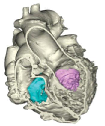 Imagen: Un modelo en 3D del corazón (Fotografía cortesía de Materialise).