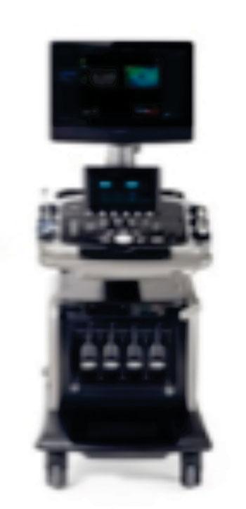 Imagen: El sistema de ultrasonido E-CUBE 15 EX (Fotografía cortesía de PRNewsFoto y Alpinion Medical Systems Co.).