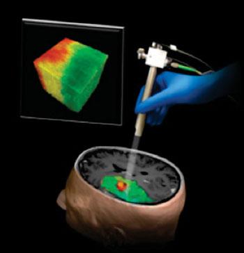 Imagen: Ilustración de una nueva técnica que emplea la Tomografía de Coherencia Óptica y que podría ayudar a los cirujanos a diferenciar un tumor cerebral humano (en rojo) del tejido circundante no canceroso (en verde) (Fotografía cortesía de Carmen Kut, Jordina Rincon-Torroella, Xingde Li y Alfredo Quiñones-Hinojosa de Johns Hopkins Medicine).