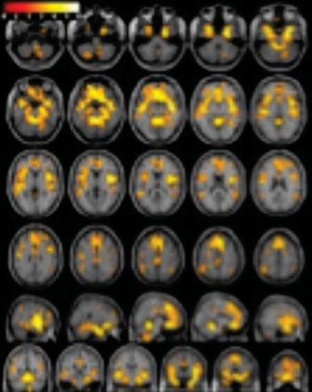 Imagen: Una imagen ponderada con RM en T1 de un cerebro, que muestra un volumen de materia gris significativamente mayor en los sujetos sanos de control que en las mujeres con dependencia a las drogas (Fotografía cortesía de la RSNA).