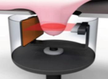 Imagen: El nuevo sistema propuesto por tomografía computarizada con ecografía (UCT) para el cribado de mama (Fotografía cortesía de Designworks).