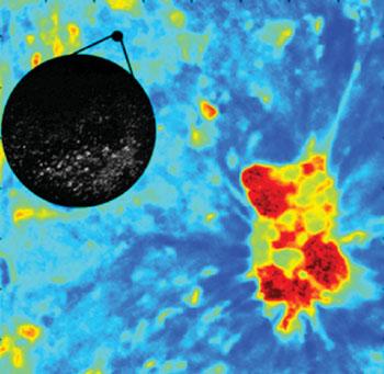 Imagen: La detección del cáncer oral con la microscopía FLIM (Fotografía cortesía de la Universidad de Texas A & M).