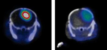 Imagen: Un glioblastoma en un escaneo de PET con (izquierda) y sin (derecha) el marcador YY146 (Fotografía cortesía de Weibo Cai, WISC).