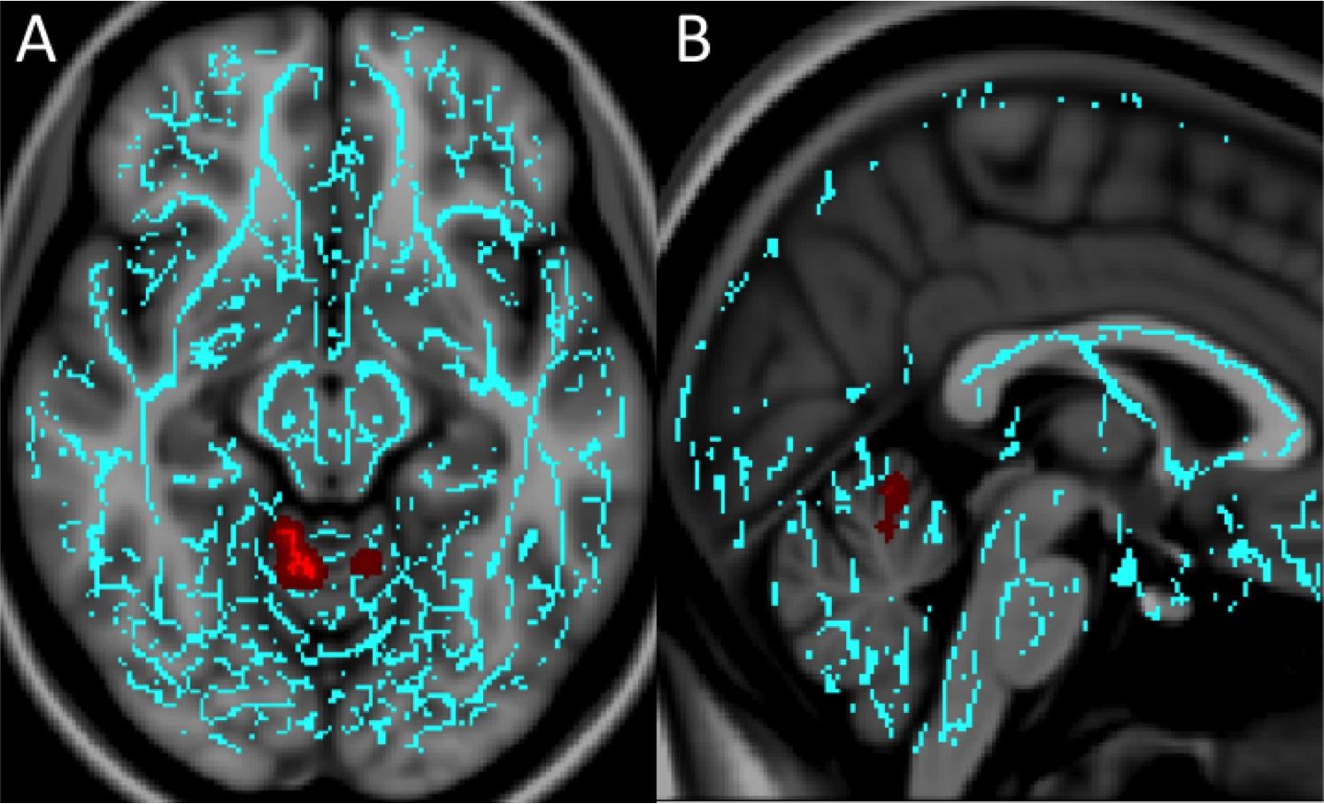 Imagen: Las importantes diferencias en la sustancia blanca de los pacientes con mTBI y ansiedad (Fotografía cortesía de la RSNA).