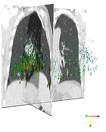 Imagen: Una representación de los pulmones obtenida mediante el método híbrido con el movimiento indicado por las flechas de colores (Fotografía cortesía de ASTAR).