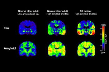 Imagen: Exámenes PET siguiendo a tau y β-amiloide a partir de dos personas mayores normales y un paciente con EA (Fotografía cortesía de Michael Schöll/UC Berkeley).