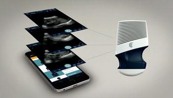 Imagen: El escáner portátil Clarius para ultrasonido (Fotografía cortesía de Clarius Mobile Health).